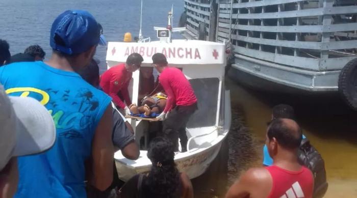 Jovem perde 100% do couro cabeludo após acidente com eixo de embarcação em Oriximiná